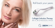 microneedling-blue-1-copy